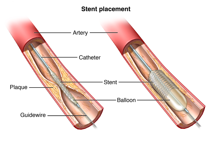 Cut view of unhealthy blood vessel with a balloon catheter stent inserted into blocked artery. Balloon and stent expanded to reopen artery.